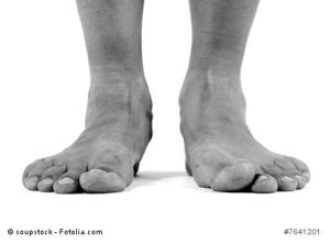Flat Feet Fallen Arches