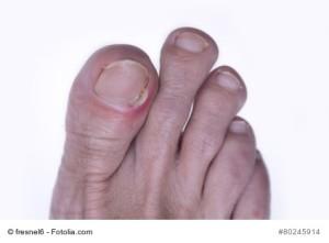 inflamed toenail