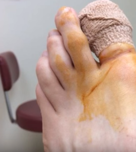 Is toenail removal painful